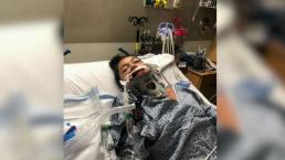 Victim Speaks After Jet Ski Crash as Suspected Driver