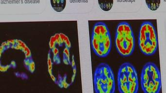 New Experimental Treatment Possibilities for Alzheimer's Disease