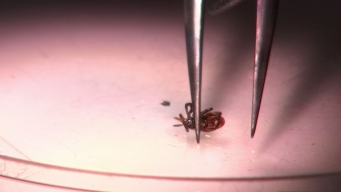 NH Health Officials Urge Caution With Ticks