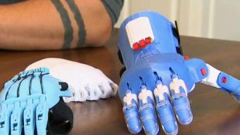 Couple Uses Plastic Trash to Make Prosthetic Limbs