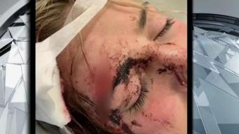 Woman Speaks Out After Beating in Salem