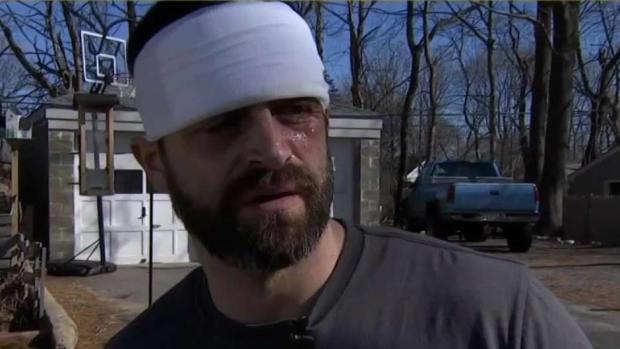 [NECN] Good Samaritan Speaks After Fiery Crash
