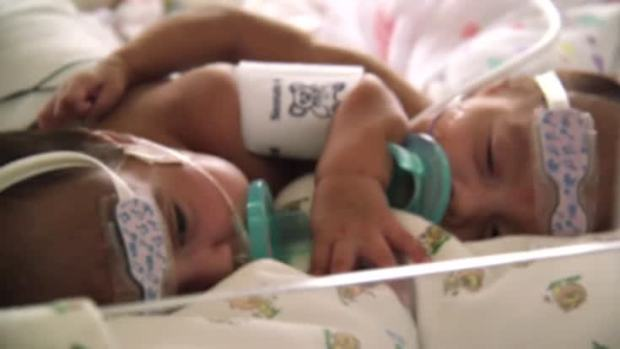 [NATL] Twins Born Conjoined at the Heart