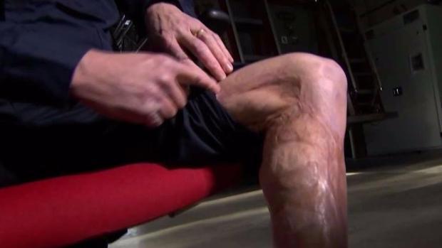 [NECN] Scars That Bind
