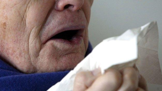 Warning: Stifling Sneezes Can Be Health Hazard in Rare Cases