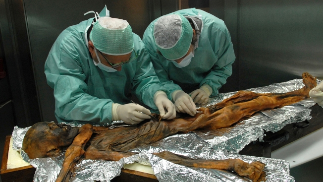 Inside of Ancient 'Iceman' Stomach Shows Signs of Well-Balanced Diet