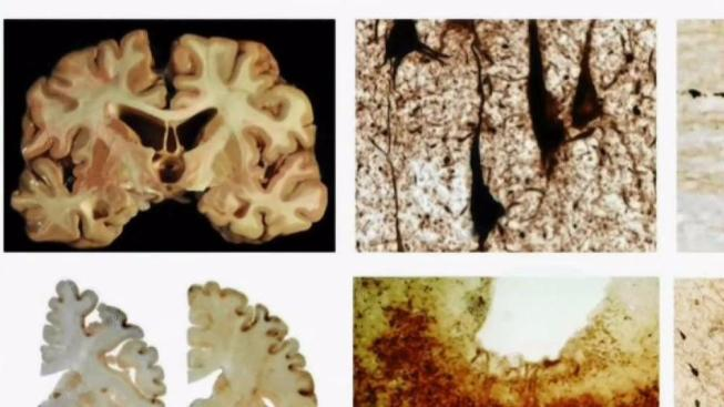 Smaller hits, not concussions, can cause CTE