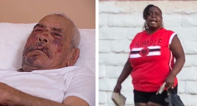 Woman Charged With Attempted Murder in Brick Beating of 92-Year-Old Man