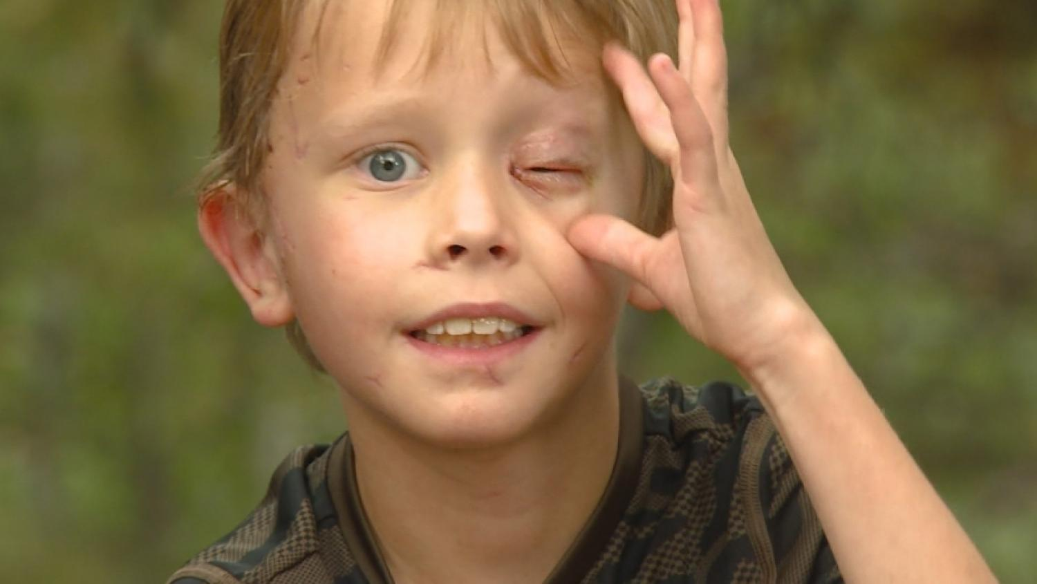 8-Year-Old Boy Survives Mountain Lion Attack